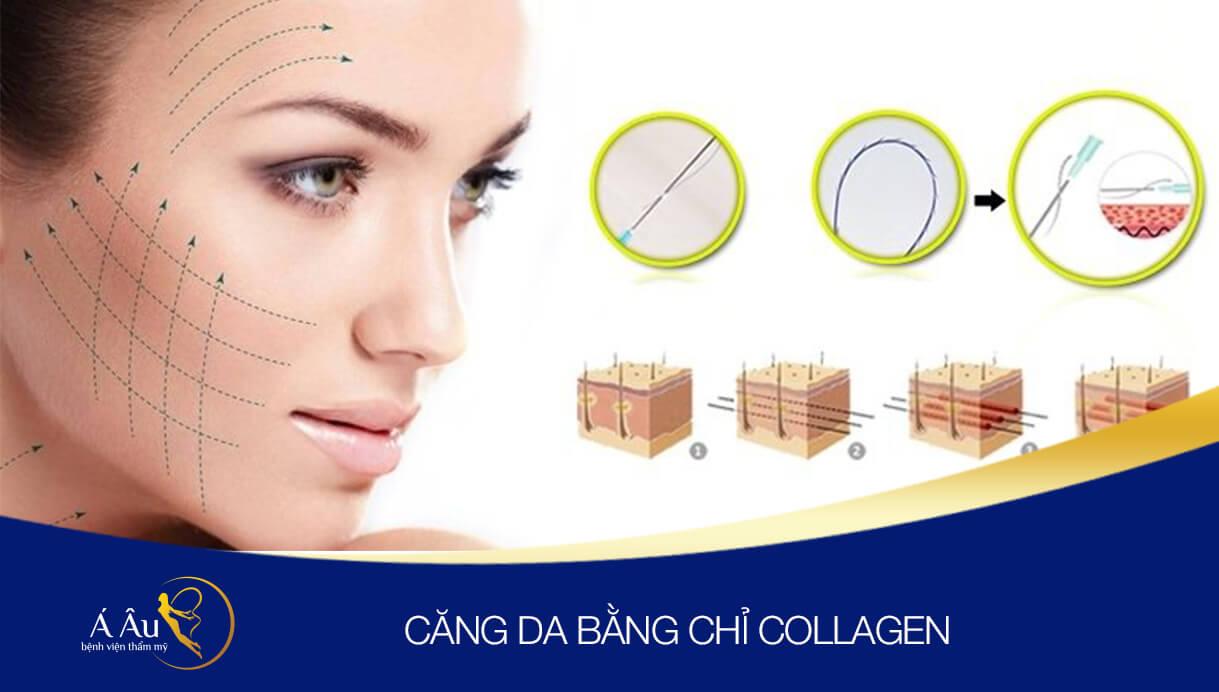 sợi chỉ Collagen tạo khung lưới dưới da chắc chắn