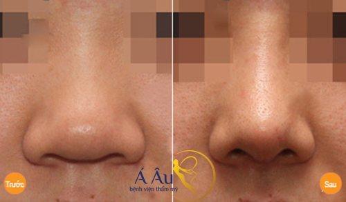 Hình ảnh trước và sau nâng mũi tại Á ÂU.
