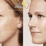 Căng da mặt nội soi được thực hiện ở vị trí khuất để tạo tính thẩm mỹ