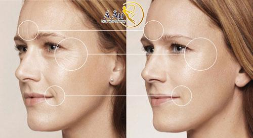 Dịch vụ căng da mặt bằng chỉvàng tại Bệnh viện thẩm mỹ Á Âu