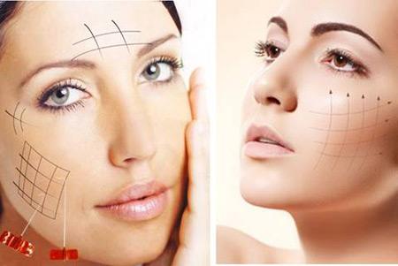 Căng da mặt bằng chỉ sinh học không cần phẫu thuật mang lại hiệu quả rõ rệt