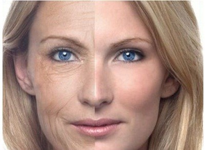 Băn khoăn về câu hỏi : Căng da mặt ở đâu đẹp ?