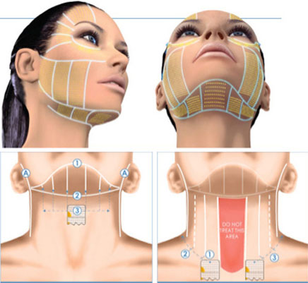 Phương pháp cũ - căng da mặt phẫu thuật - dù mang lại hiểu quả tốt, nhưng đau và có khả năng để lại sẹo