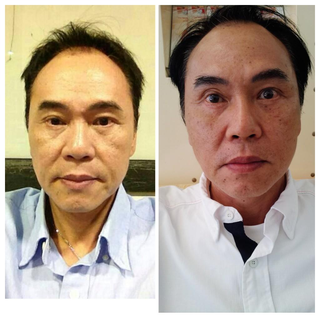 chivang-hinh-anh-truoc-sau-cang-da-chi-vang8-1024x1024