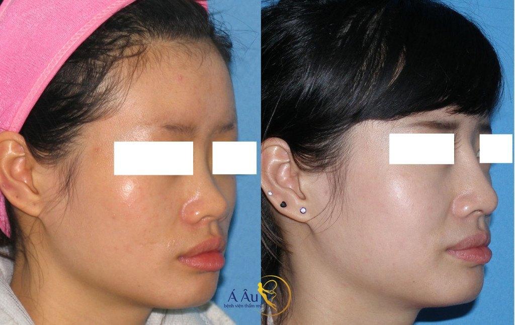 Hình ảnh trước và sau nâng mũi tại Bệnh viện thẩm mỹ Á Âu. Hình ảnh trước và sau nâng mũi tại Bệnh viện thẩm mỹ Á Âu.