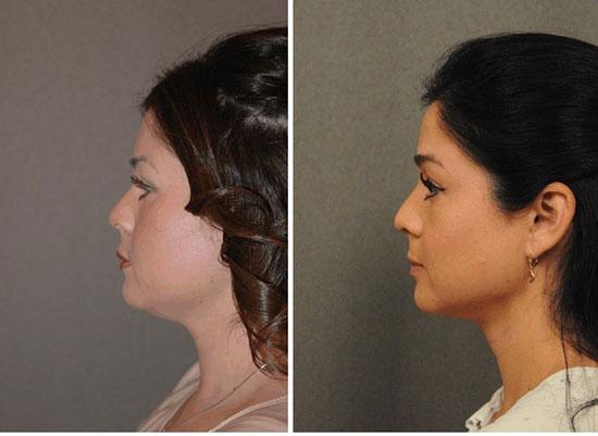 kết quả hút mỡ mặt không phẫu thuật