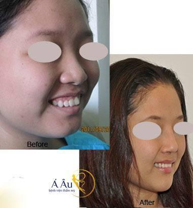 Hình ảnh trước và sau nâng mũi tại Bệnh viện thẩm mỹ Á Âu.
