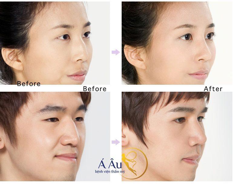 Hình ảnh trước và sau thu hẹp sống mũi tại Á Âu. Hình ảnh trước và sau thu hẹp sống mũi tại Á Âu.