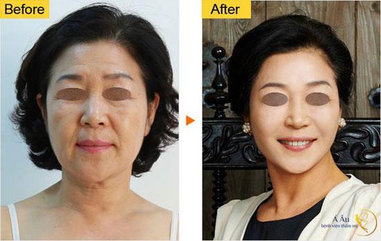 chi-vang-collagen-2016-2
