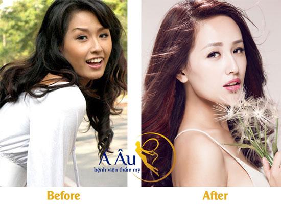 mai-phuong-thuy-chi-vang-collagen-2016