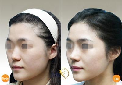 Hình ảnh trước và sau nâng mũi tại Á Âu. Hình ảnh trước và sau nâng mũi tại Á Âu.