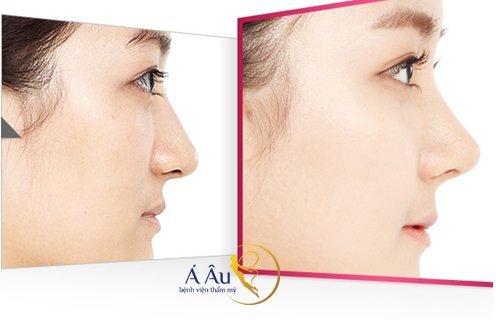 Hình ảnh trước và sau nâng mũi tại Bệnh viện thẩm mỹ Á ÂU