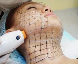 Căng da mặt bằng Thermage là phương pháp căng da nhanh chóng an toàn