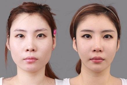 tao-hinh-guong-mat-chuan-han-quoc-9