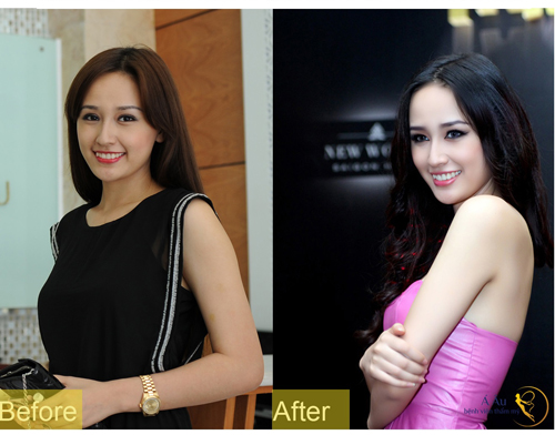 tinh-chat-collagen-tuoi-2