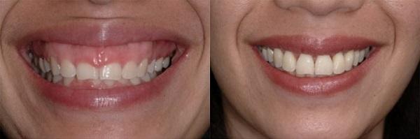 cách chữa cười hở lợi