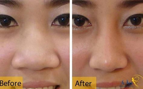 Hình ảnh trước và sau khi thu nhỏ đầu mũi