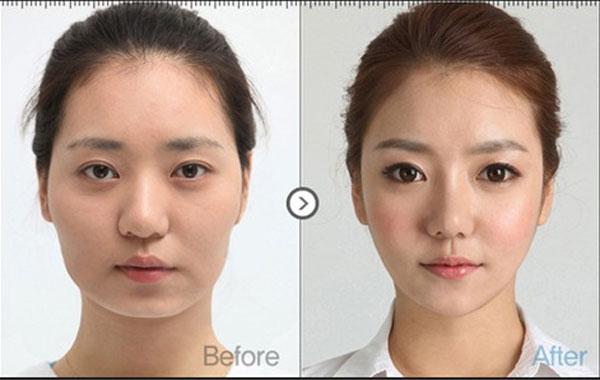 Phẫu thuật mặt