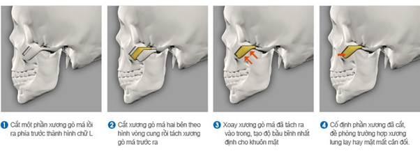 phau-thuat-ha-go-ma-tai-khoa-rang-ham-mat-implant-a-au-1