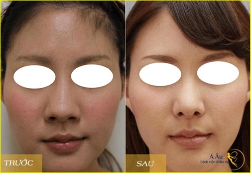 Hình ảnh trước và sau khi nâng mũi tại Á Âu.