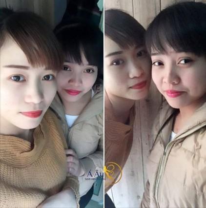 Hình ảnh trước và sau bấm mí Hàn quốc tại Á Âu.