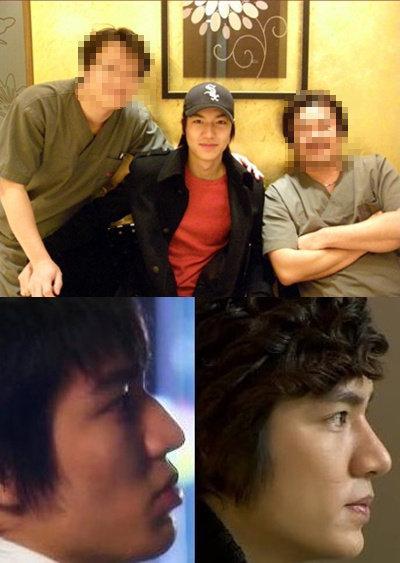 Lee Min Hoo đã nhờ đến sự giúp đỡ của bác sĩ thẩm mỹ để chỉnh hình thẩm mỹ mũi gồ.