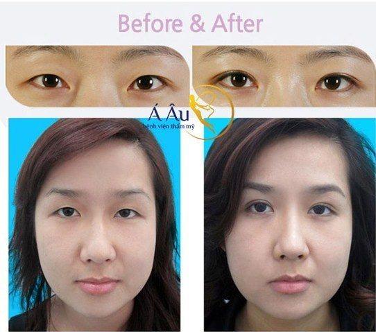 Hình ảnh trước và sau khi tạo mắt 2 mí tại Á Âu.