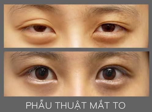 phau-thuat-mat-to-han-quoc-cho-doi-mat-to-hut-hon-dep-tu-nhien6