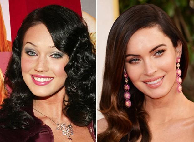 Chiếc mũi S line rất tự nhiên sau phẫu thuật của Megan Fox