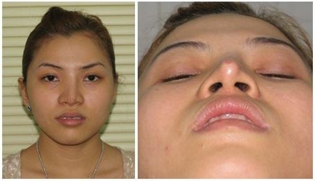 Sửa mũi tại bác sĩ thiếu kinh nghiệm, uy tín rất nguy hại