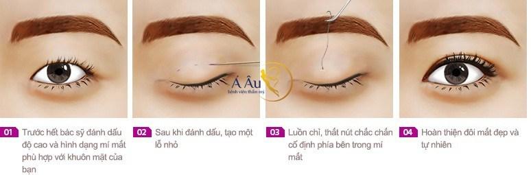 Công nghệ bấm mí mắt không ảnh hưởng đến thị lực của mắt.