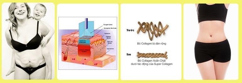 cang-da-bung-cung-super-collagen-lay-lai-vong-eo-quyen-ru