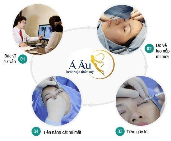 Quy trình cắt mí mắt tại Bệnh viện thẩm mỹ Á Âu.