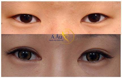 Kết quả cắt mắt 2 mí đẹp tự nhiên tại bệnh viện