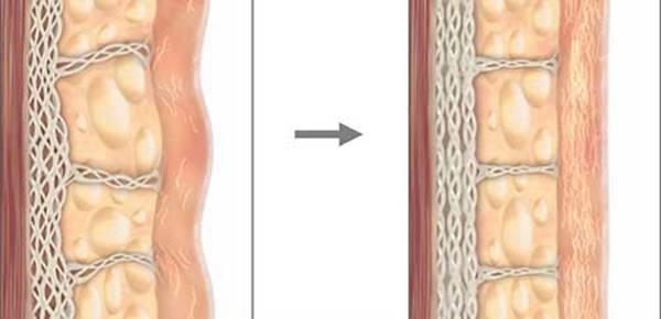 nâng cơ trẻ hóa da Ulthera