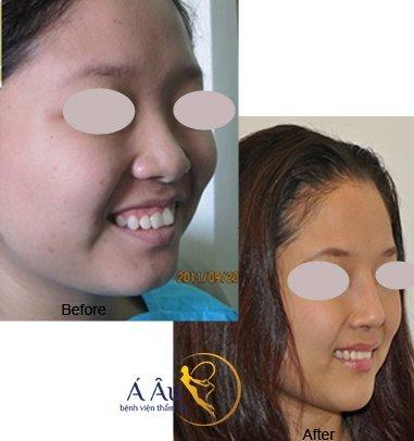 Hình ảnh trước và sau khi nâng mũi tại Bệnh viện thẩm mỹ Á Âu.