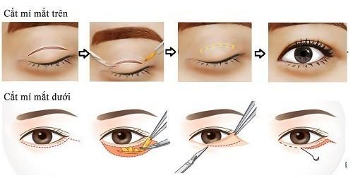 minh họa cắt mắt 2 mí an toàn