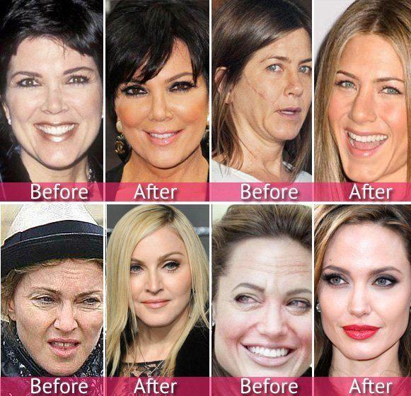 Kết quả điều trị với liệu trình TriO – Iskin của các ngôi sao Hollywood