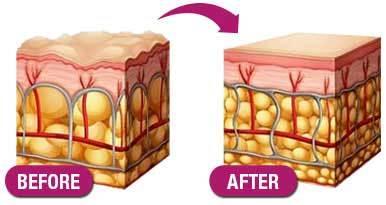Sự thay đổi của làn da trước và sau khi áp dụng liệu trình TriO - Iskin