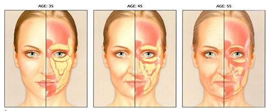 Quá trình tiêu giảm mô mỡ khiến khuôn mặt chảy xệ, hốc hác