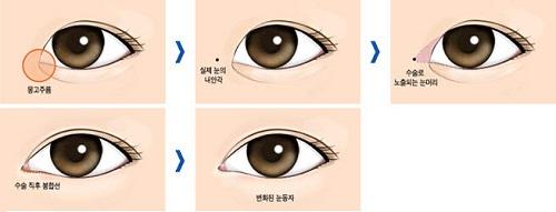 thẩm mỹ mắt to giá bao nhiêu