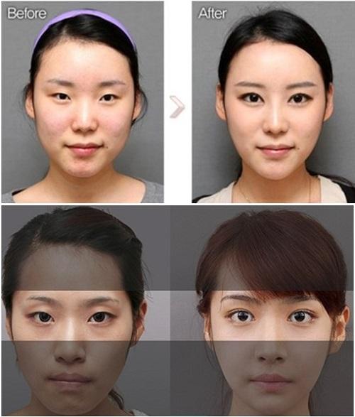Phẫu thuật mở rộng góc mắt bao nhiêu tiền