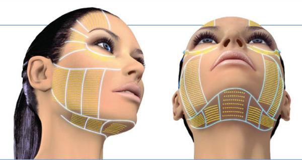 tạo mặt V-line không phẫu thuật