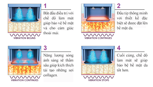 xoa-nhan-ranh-mui-mieng-voi-cong-nghe-new-thermage-4