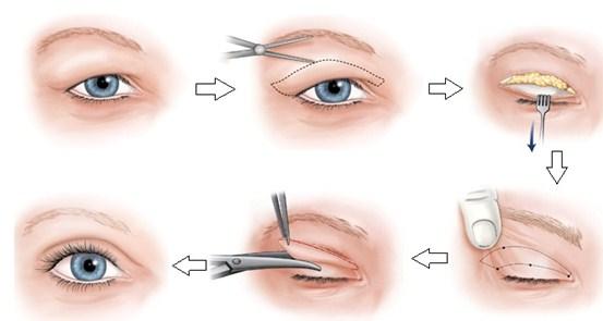 cắt mắt