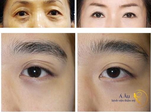 Kết quả cắt mắt 2 mí hiệu quả cao mà không nguy hiểm
