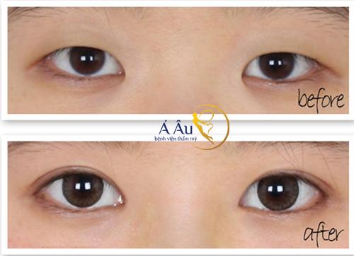 Phẫu thuật mắt to Hàn Quốc