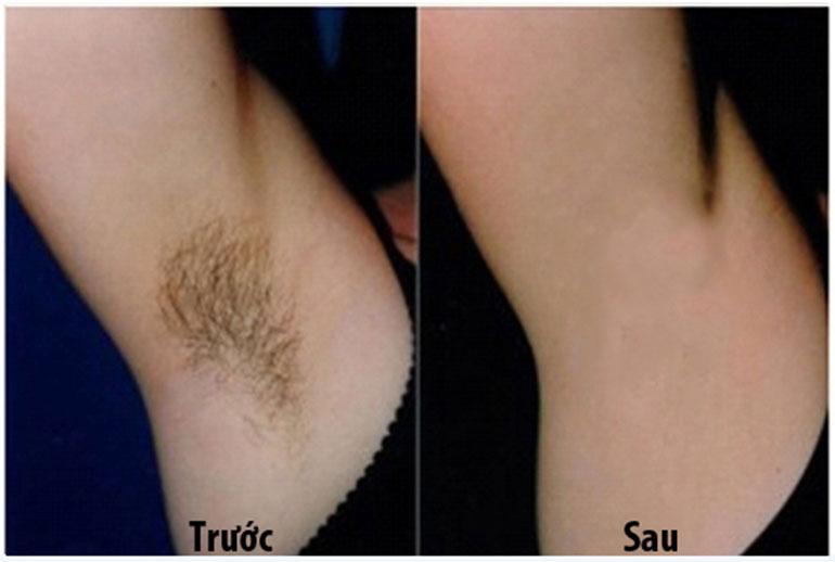 công nghệ triệt lông