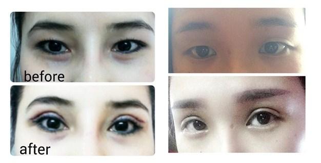 Kết quả cắt mắt 2 mí không để lại sẹo