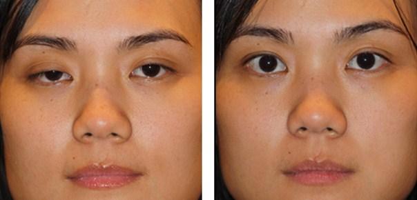 kết quả trước và sau cắt mắt hai mí